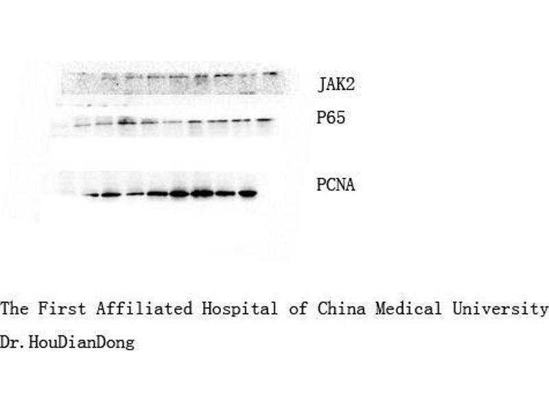Western Blotting (WB) image for anti-Nuclear Factor-KB P65 (NFkBP65) antibody (ABIN3181123)