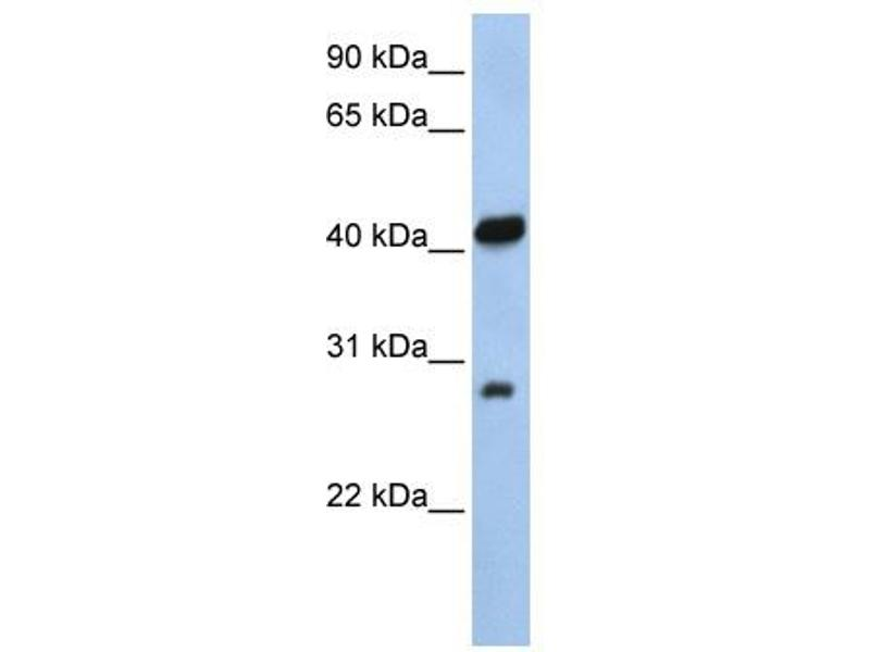 Western Blotting (WB) image for anti-Zinc Finger, AN1-Type Domain 3 (ZFAND3) (N-Term) antibody (ABIN309736)