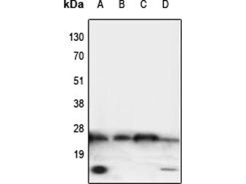 Western Blotting (WB) image for anti-Tumor Necrosis Factor (TNF) (Center) antibody (ABIN2707185)