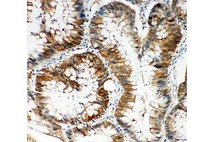 Immunohistochemistry (IHC) image for anti-KH Domain Containing, RNA Binding, Signal Transduction Associated 1 (KHDRBS1) (N-Term) antibody (ABIN3031544)
