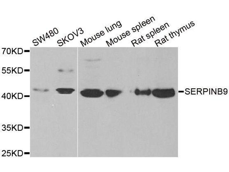 Image no. 1 for anti-serpin Peptidase Inhibitor, Clade B (Ovalbumin), Member 9 (SERPINB9) antibody (ABIN6147596)