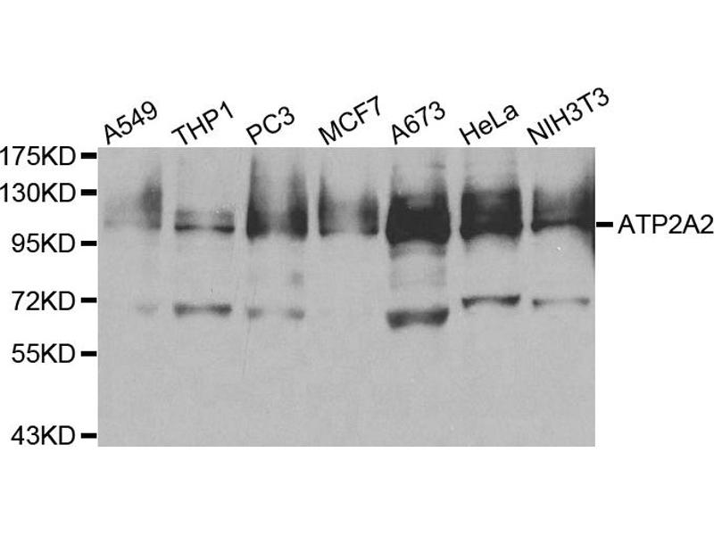 Image no. 2 for anti-ATPase, Ca++ Transporting, Cardiac Muscle, Slow Twitch 2 (ATP2A2) antibody (ABIN6567041)