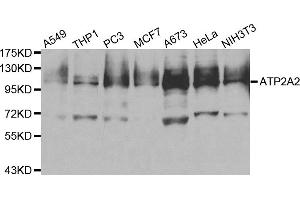 Western Blotting (WB) image for anti-ATPase, Ca++ Transporting, Cardiac Muscle, Slow Twitch 2 (ATP2A2) antibody (ABIN5962911)