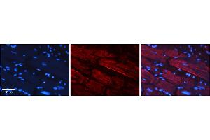 Image no. 4 for anti-Growth Regulation By Estrogen in Breast Cancer 1 (GREB1) (N-Term) antibody (ABIN2780943)