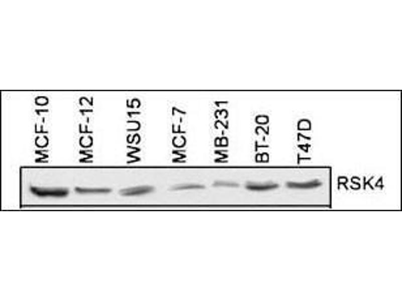 Western Blotting (WB) image for anti-Ribosomal Protein S6 Kinase, 90kDa, Polypeptide 6 (RPS6KA6) (AA 15-45), (N-Term) antibody (ABIN1882127)