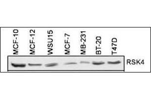 Western Blotting (WB) image for anti-RPS6KA6 antibody (Ribosomal Protein S6 Kinase, 90kDa, Polypeptide 6) (AA 15-45) (ABIN1882127)