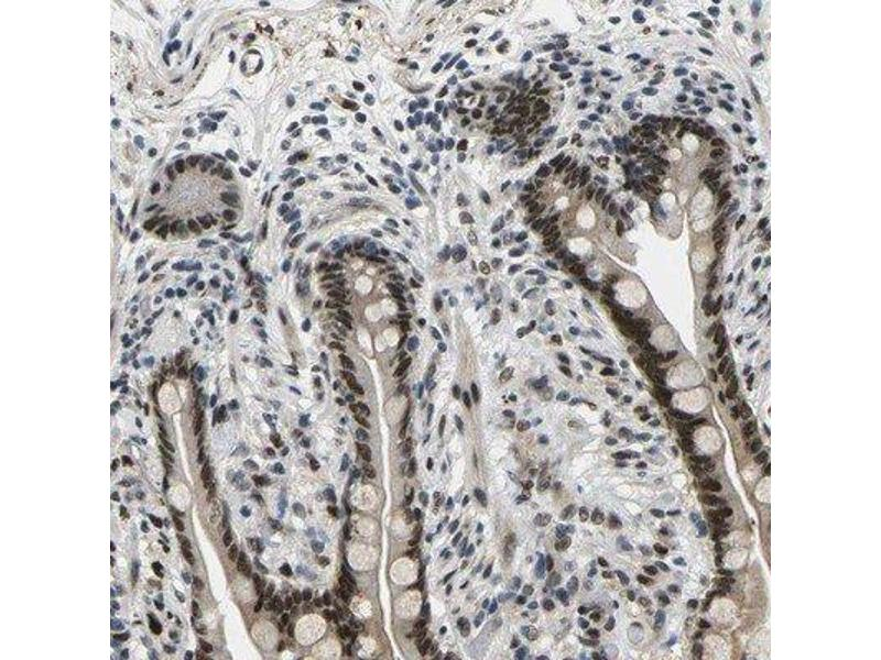 Immunohistochemistry (Paraffin-embedded Sections) (IHC (p)) image for anti-RNA Binding Motif Protein 7 (RBM7) antibody (ABIN4349639)