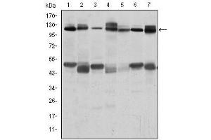 Western Blotting (WB) image for anti-Cas-Br-M (Murine) Ecotropic Retroviral Transforming Sequence (CBL) antibody (ABIN1105707)