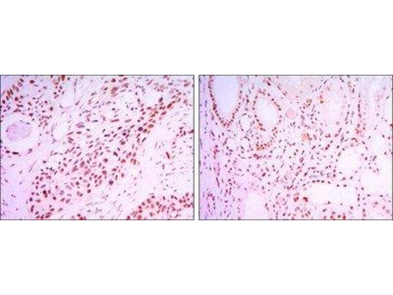 Immunohistochemistry (Paraffin-embedded Sections) (IHC (p)) image for anti-Sirtuin 1 (SIRT1) antibody (ABIN4353901)