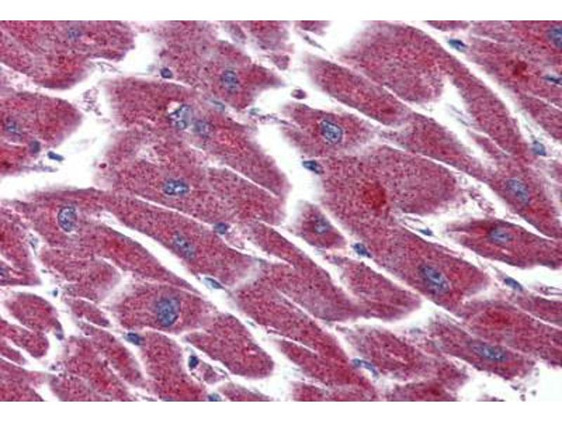 Immunohistochemistry (Paraffin-embedded Sections) (IHC (p)) image for anti-Lysophosphatidic Acid Receptor 3 (LPAR3) (Internal Region) antibody (ABIN399993)