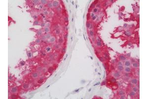 Image no. 1 for anti-Ankyrin Repeat and SOCS Box Containing 9 (ASB9) antibody (FITC) (ABIN2589080)