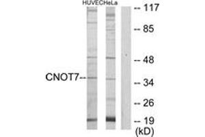 Image no. 1 for anti-CCR4-NOT Transcription Complex, Subunit 7 (CNOT7) (AA 10-59) antibody (ABIN1534181)