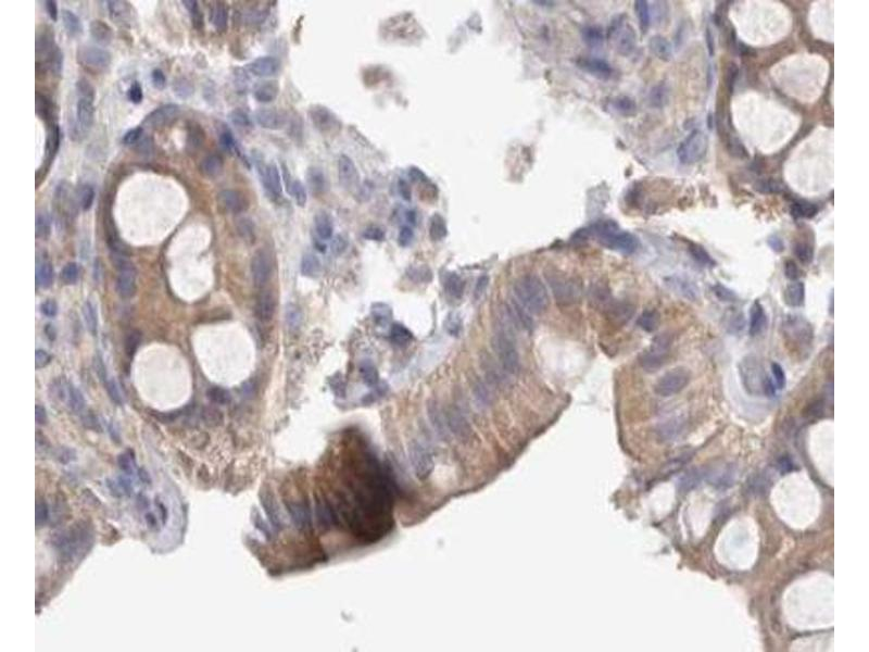 Image no. 1 for anti-V-Src Sarcoma (Schmidt-Ruppin A-2) Viral Oncogene Homolog (Avian) (SRC) (pTyr418) antibody (ABIN6255912)