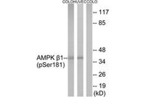 Image no. 1 for anti-Protein Kinase, AMP-Activated, beta 1 Non-Catalytic Subunit (PRKAB1) (AA 147-196), (pSer182) antibody (ABIN1531259)