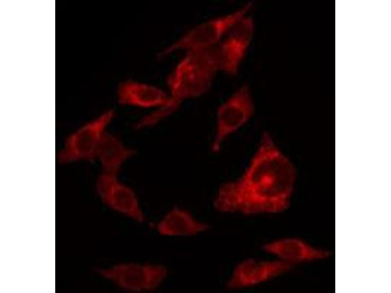 Immunofluorescence (fixed cells) (IF/ICC) image for anti-V-Erb-A erythroblastic Leukemia Viral Oncogene Homolog 4 (Avian) (ERBB4) (pTyr1284) antibody (ABIN6256632)