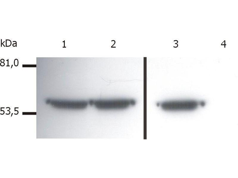 Western Blotting (WB) image for anti-Vimentin (VIM) antibody (ABIN94491)