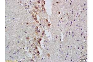 Immunohistochemistry (Paraffin-embedded Sections) (IHC (p)) image for anti-Signal Transducer and Activator of Transcription 1, 91kDa (STAT1) antibody (ABIN674889)