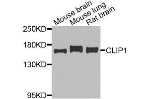 Image no. 3 for anti-CAP-GLY Domain Containing Linker Protein 1 (CLIP1) antibody (ABIN6138726)