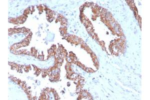 Image no. 4 for anti-Prostate Transmembrane Protein, Androgen Induced 1 (PMEPA1) antibody (ABIN6940417)
