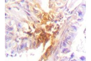 Immunohistochemistry (Paraffin-embedded Sections) (IHC (p)) image for anti-IL2 Receptor beta antibody (Interleukin 2 Receptor, beta) (ABIN498147)