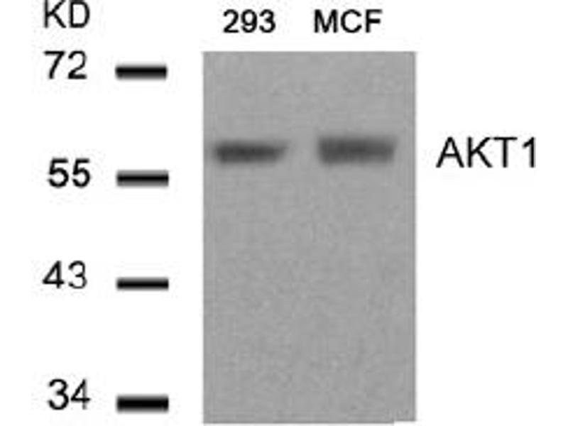 Image no. 3 for anti-AKT antibody (V-Akt Murine Thymoma Viral Oncogene Homolog 1) (Thr450) (ABIN319375)