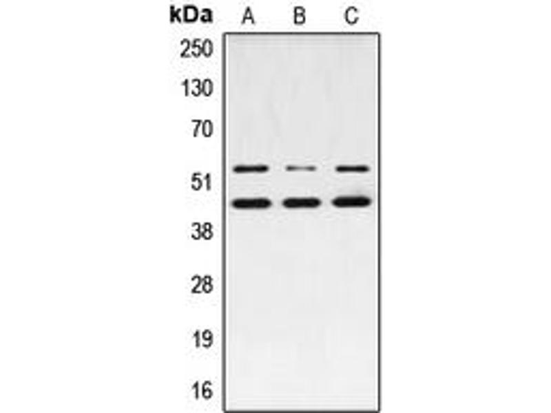 Western Blotting (WB) image for anti-JNK antibody (Mitogen-Activated Protein Kinase 8) (pSer183) (ABIN2706428)