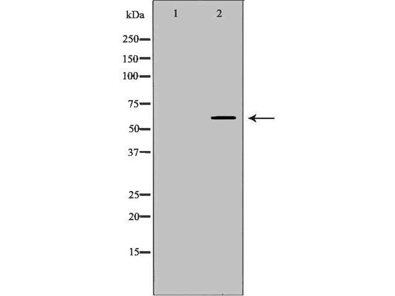 Western Blotting (WB) image for anti-Tripeptidyl Peptidase I (TPP1) antibody (ABIN6265695)