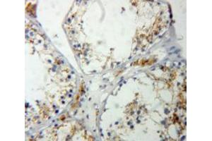 Image no. 3 for anti-RAS P21 Protein Activator (GTPase Activating Protein) 1 (RASA1) (AA 403-596) antibody (ABIN5014247)