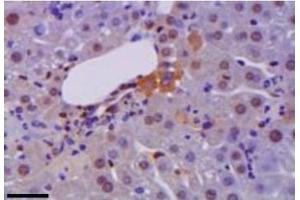 Image no. 3 for anti-High Mobility Group Box 1 (HMGB1) antibody (ABIN1176834)
