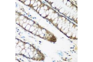 Image no. 1 for anti-Nuclear Cap Binding Protein Subunit 2 (NCBP2) antibody (ABIN6144401)