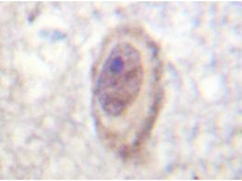 Immunohistochemistry (Paraffin-embedded Sections) (IHC (p)) image for anti-RAF1 antibody (V-Raf-1 Murine Leukemia Viral Oncogene Homolog 1) (ABIN498112)