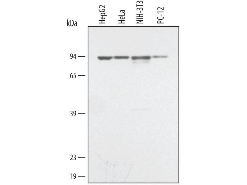 Western Blotting (WB) image for anti-STAT3 antibody (Signal Transducer and Activator of Transcription 3 (Acute-Phase Response Factor)) (AA 1-175) (ABIN4898974)