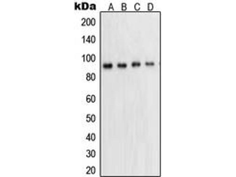 Western Blotting (WB) image for anti-STAT5A antibody (Signal Transducer and Activator of Transcription 5A) (Center) (ABIN2707112)