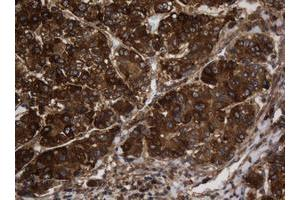 Image no. 6 for anti-Asialoglycoprotein Receptor 2 (ASGR2) antibody (ABIN1496744)