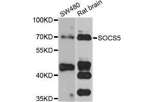 Western Blotting (WB) image for anti-SOCS5 antibody (Suppressor of Cytokine Signaling 5) (ABIN2737572)