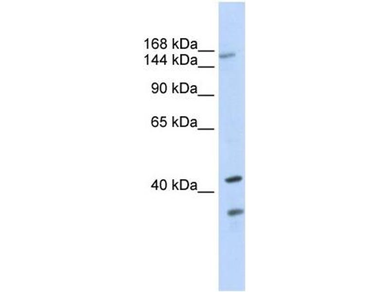 Western Blotting (WB) image for anti-ATP-Binding Cassette, Sub-Family C (CFTR/MRP), Member 8 (ABCC8) (N-Term) antibody (ABIN2781496)