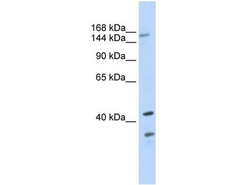 Image no. 2 for anti-ATP-Binding Cassette, Sub-Family C (CFTR/MRP), Member 8 (ABCC8) (N-Term) antibody (ABIN2781496)