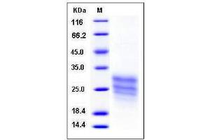 Image no. 1 for Teratocarcinoma-Derived Growth Factor 1 (TDGF1) (AA 1-172) (Active) protein (His tag) (ABIN2003591)
