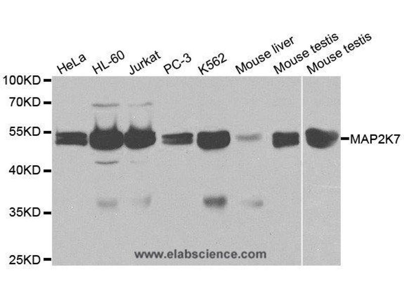 Western Blotting (WB) image for anti-MAP2K7 antibody (Mitogen-Activated Protein Kinase Kinase 7) (ABIN2405246)