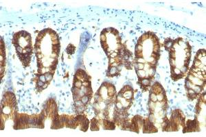 Image no. 5 for anti-Epithelial Cell Adhesion Molecule (EPCAM) (AA 280-350), (Cytoplasmic Domain) antibody (ABIN6939974)