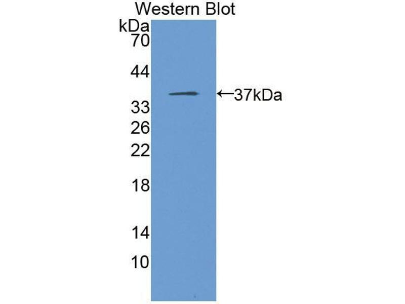Western Blotting (WB) image for anti-Monoglyceride Lipase (MGLL) (AA 1-303) antibody (ABIN2937630)