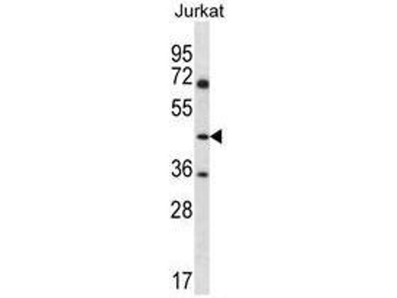 Western Blotting (WB) image for anti-Argininosuccinate Synthase 1 (ASS1) (AA 280-310), (C-Term) antibody (ABIN950542)