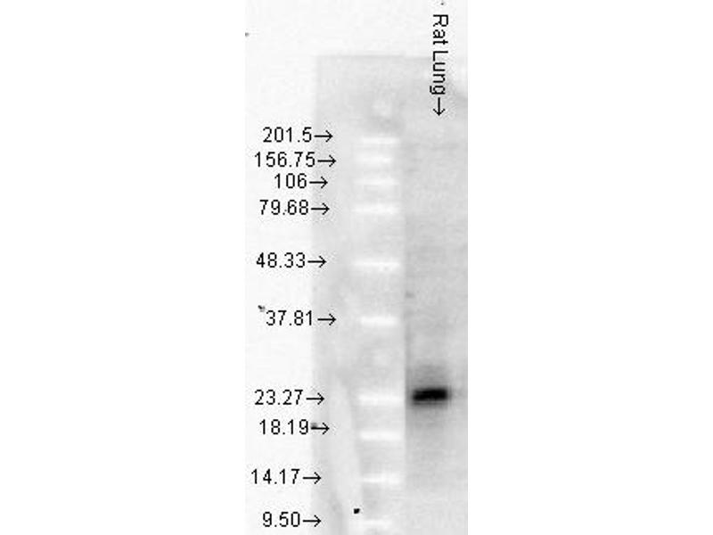 Western Blotting (WB) image for anti-Heat Shock 27kDa Protein 1 (HSPB1) antibody (ABIN361756)