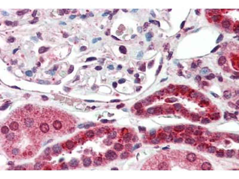 Immunohistochemistry (Paraffin-embedded Sections) (IHC (p)) image for anti-Nuclear Receptor Subfamily 3, Group C, Member 2 (NR3C2) antibody (ABIN396956)