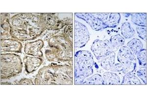 Image no. 1 for anti-Cystatin 9-Like (CST9L) (AA 81-130) antibody (ABIN1534808)