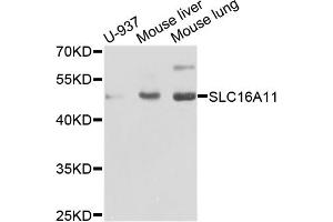 Image no. 1 for anti-Solute Carrier Family 16, Member 11 (Monocarboxylic Acid Transporter 11) (SLC16A11) antibody (ABIN6571866)
