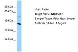 Image no. 1 for anti-Chromosome 20 Open Reading Frame 7 (C20orf7) (AA 43-92) antibody (ABIN6750089)