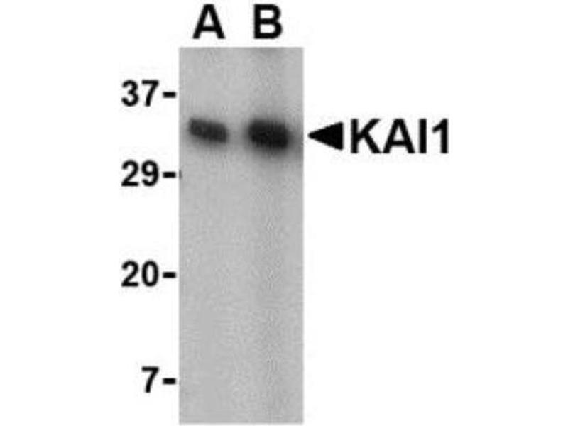 Western Blotting (WB) image for anti-CD82 Antikörper (CD82 Molecule) (C-Term) (ABIN4296216)