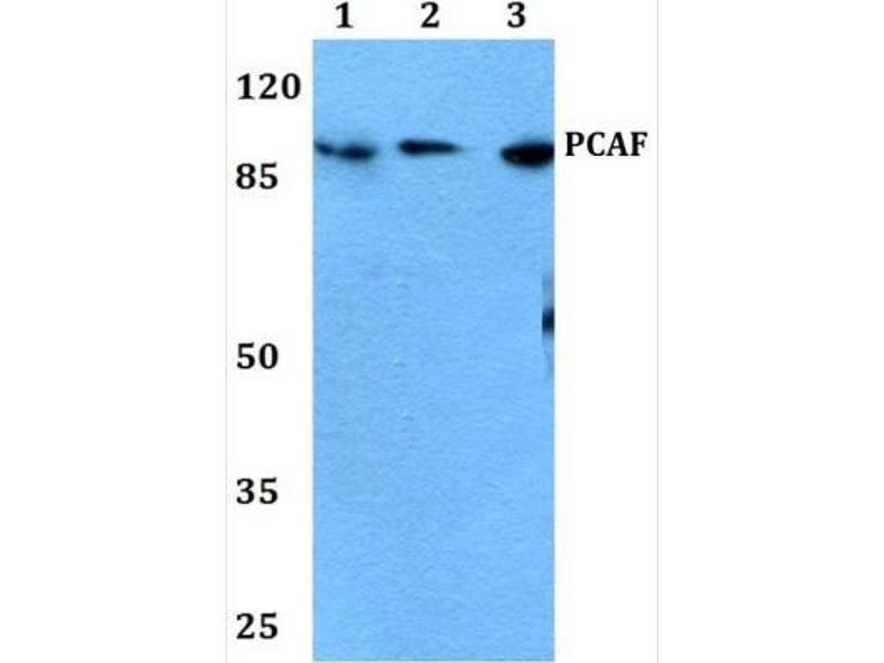 Western Blotting (WB) image for anti-KAT2B antibody (K(lysine) Acetyltransferase 2B) (ABIN4344010)
