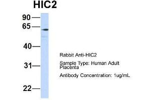 Image no. 3 for anti-Hypermethylated in Cancer 2 (HIC2) (Middle Region) antibody (ABIN2777438)